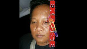Azis alias Jack yang diduga menjadi korban kekerasan oknum polisi di Surabaya. [Dok.MaduraExpose.Com]